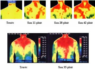 Tia hồng ngoại đem tới rất nhiều lợi ích cho cơ thể